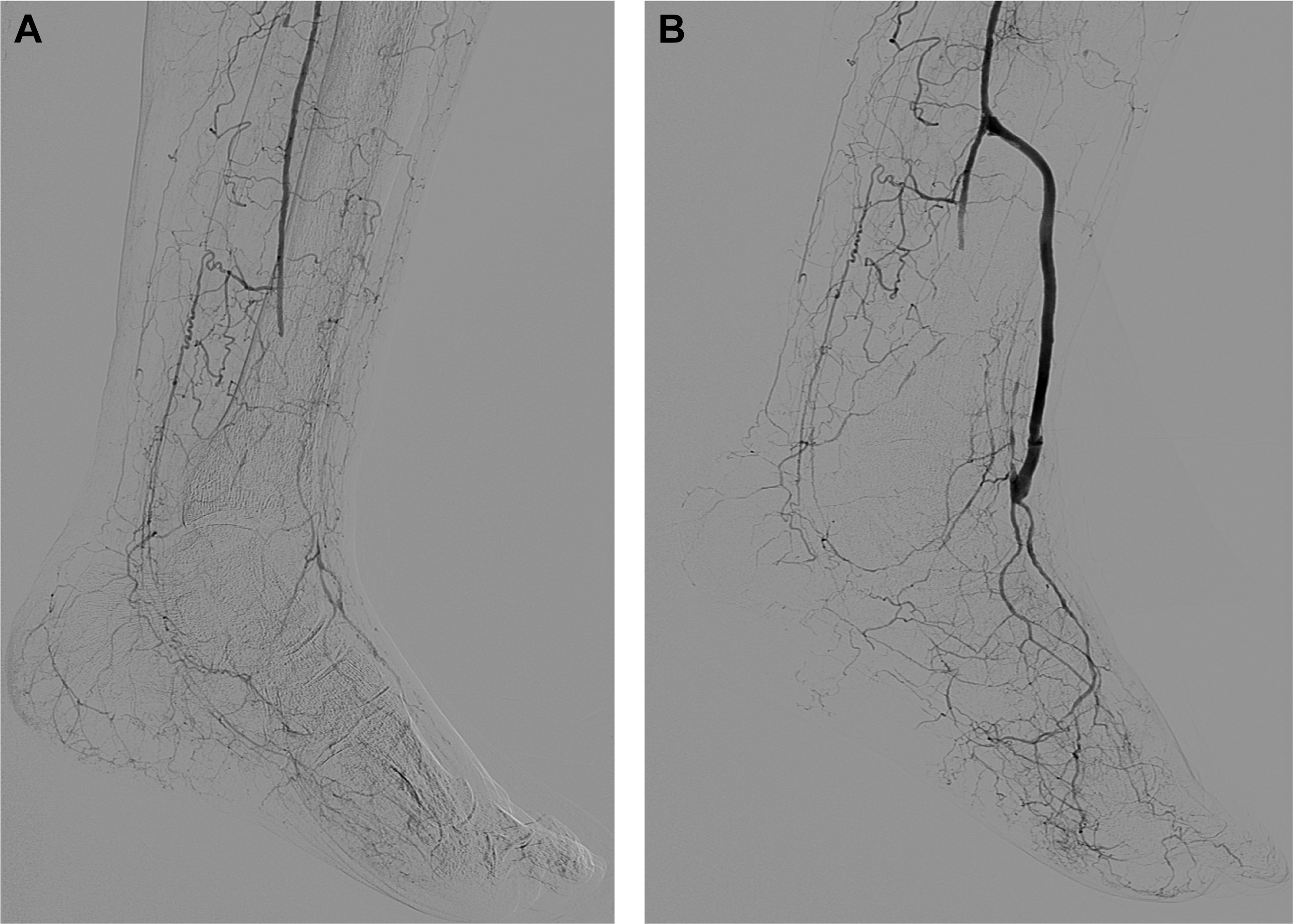 Tibiodistal vein bypass in critical limb ischemia and its