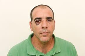 Shlomo Ben-Haim - injured in racist attack    photo: Henry Benjamin