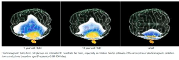 Pénétration des champs EM dans le cerveau selon l'âge