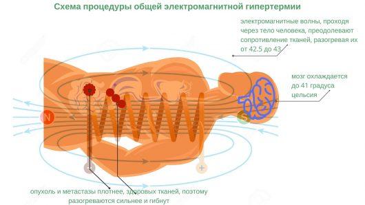 схема процедуры общей гипертермии