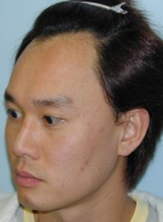 asian hairline lowering san francisco