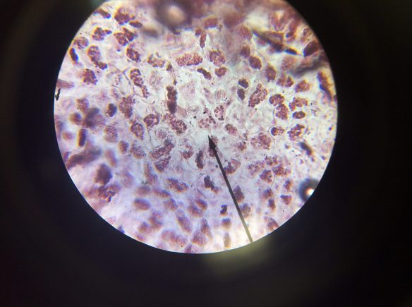 Spinach Cells - Aceto-orcein stain