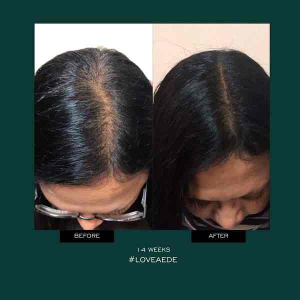 Aéde Hair activist kabuki hair