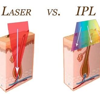 IPL Lazer Nedir?