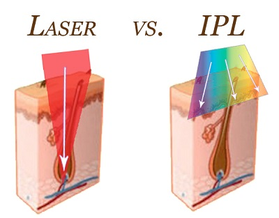 ipl-lazer-nedir