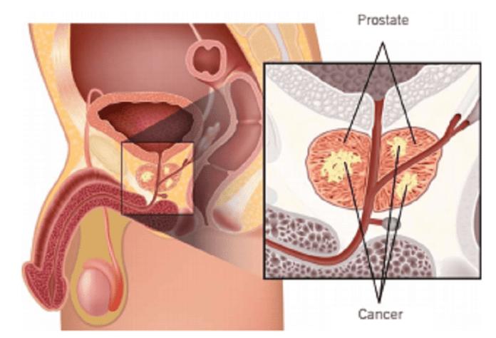 cancer de la prostate - Capture