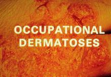 dermatoses sont un terme général utilisé pour décrire tout défaut cutané