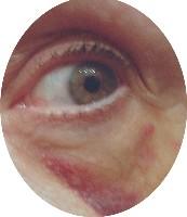 blackeye2.jpg