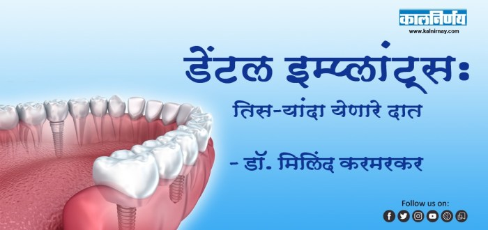 इम्प्लांट | Dental Implants | Dr. Milind Karmarkar | Implant