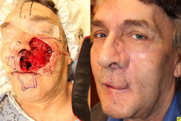 ? Atlanta Facial Reconstructive Surgery Before and After Photos | Buckhead