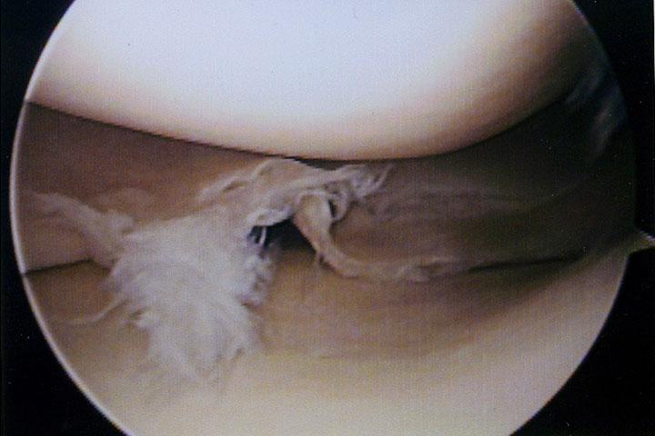 お悩み相談Q&A 福岡県古賀市 醫療法人 亀山整形外科醫院 優れた専門性を生かし、 腰・膝・肩の検査・診斷 ...