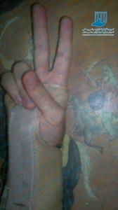 دست وحید اصغری زندانی سیاسی_kampain.info