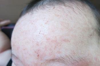 皮膚糸狀菌が感染する白癬と皮膚結核の癥狀と治療法