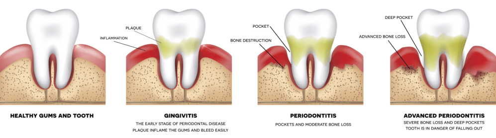 medium resolution of  thorough professional tooth and gum cleaning as the infection spreads scaling root planning laser therapy or gum surgery may be necessary to repair