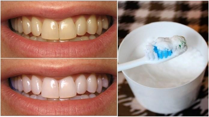 طرق تبيض الأسنان بالبيكنج بودر