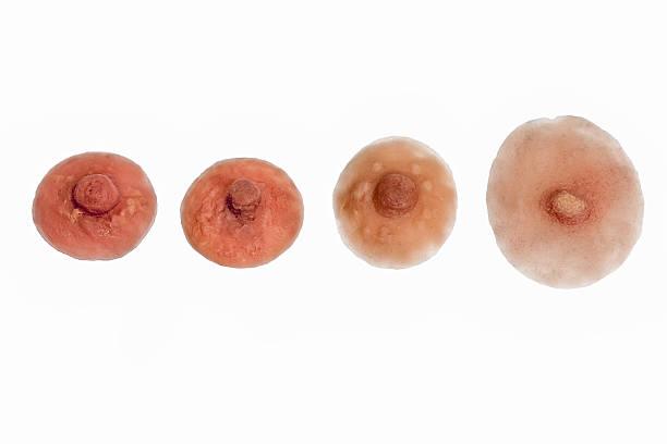 سبب تغيير لون حلمة الثدي إلى البني