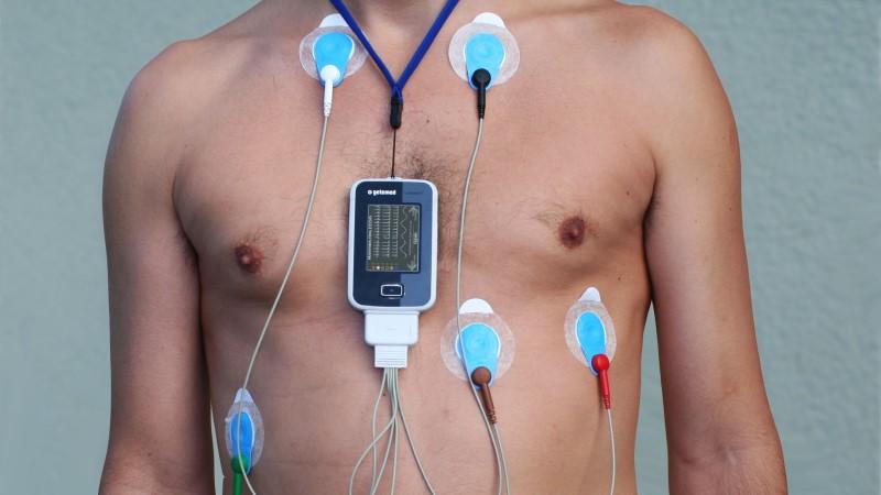 Kardiologia - felhelyezett EKG készülék nyugalmi vizsgálat közben