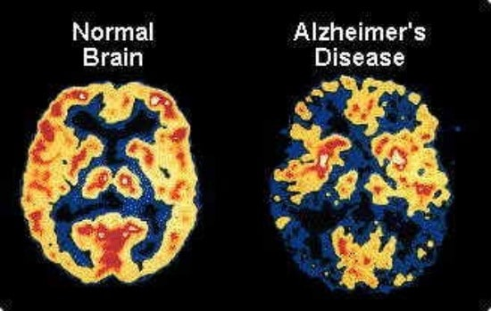 alzheimers-large-wheelchairs