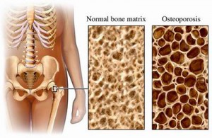 Osteoporosis Requires Wheelchair