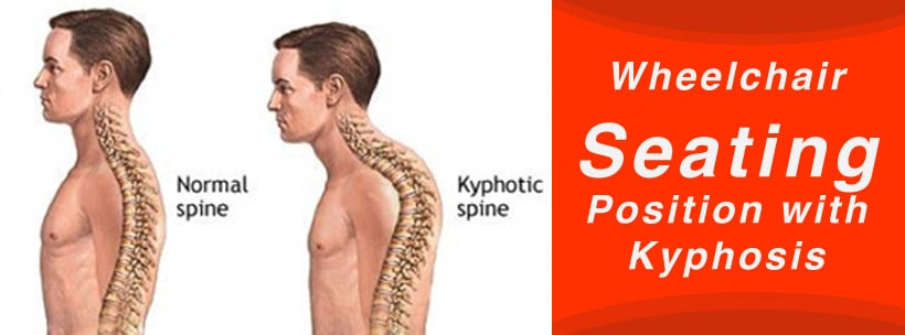 Wheelchair Seating Position with Kyphosis