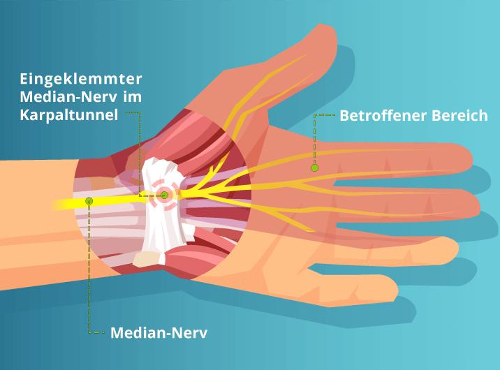 Handgelenksbereich mit Median-Nerv