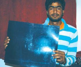 Basit-Malla-shows-X-ray-of-pellet-ridden-skull