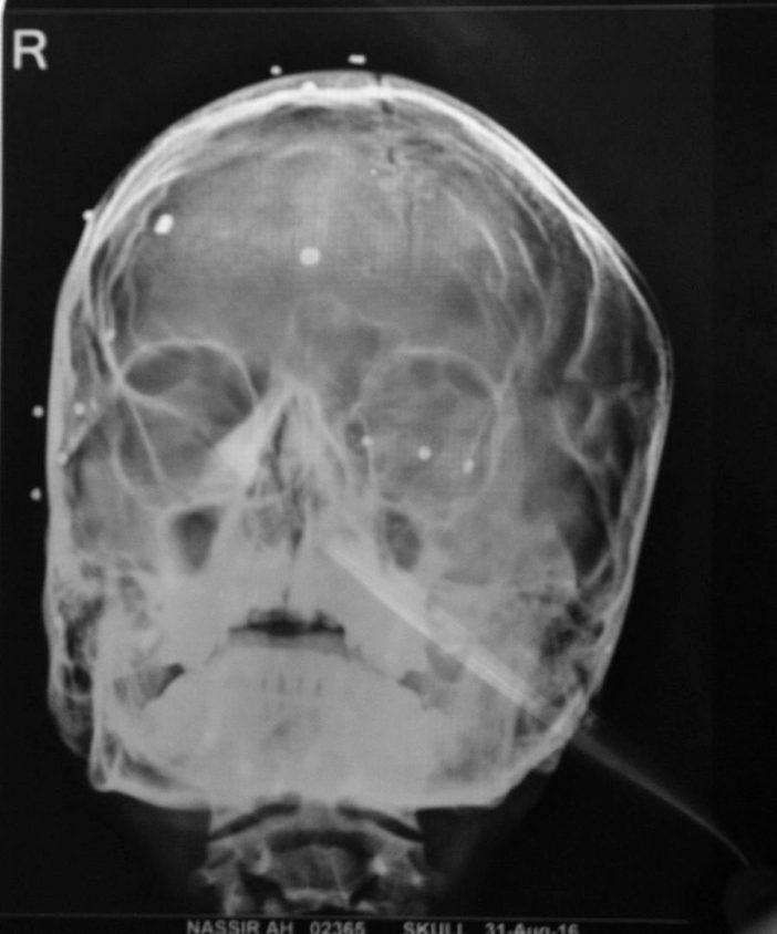 eye-pellet-victims-5-x-ray