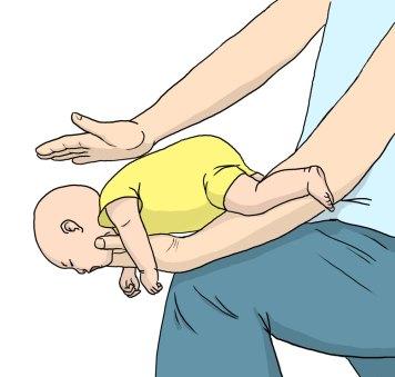 Zakrztuszenie dziecka