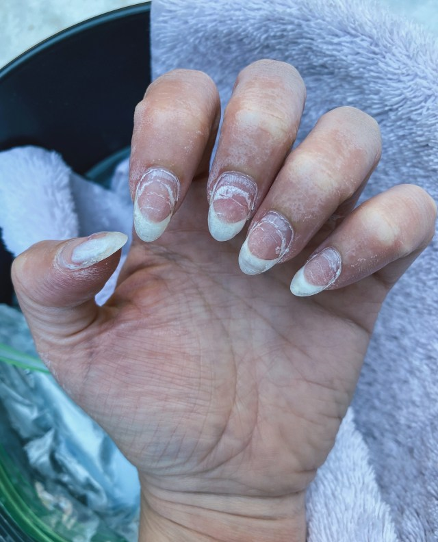 Nails after a soak in 100% acetone, Remove Dip Nails at Home