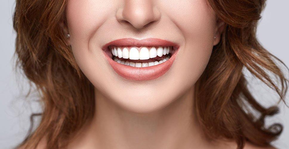 cosmetic dentistry sunshine coast