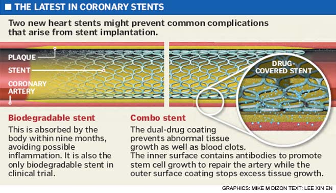 latest coronary stents