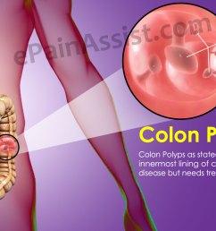 colon polyp diagram [ 2000 x 1000 Pixel ]