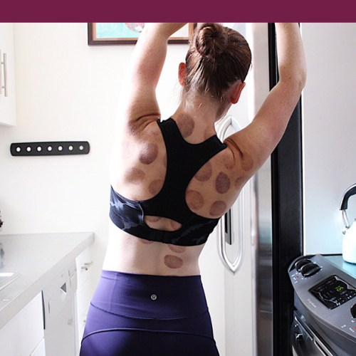 cupping therapy, first time cupping therapy, what you need to know about cupping