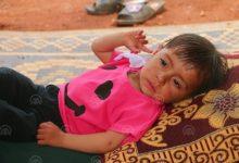 Photo of Sirijska djevojčica Aya hitno treba operaciju srca