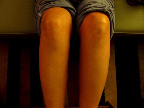 scar-resized-600