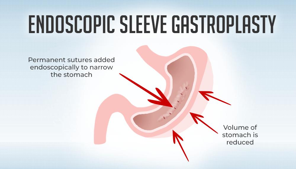 Endoscopic Sleeve Gastroplasty VS Laparoscopic Sleeve ...