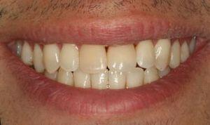 completed Implant Restoration