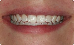 After Zoom tooth whitening