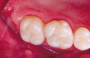New Composite Fillings