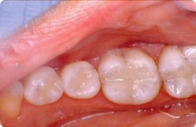 Composite fillings is general dentistry