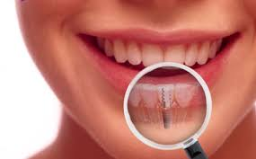 woman replacing teeth with unnoticeable dental implant