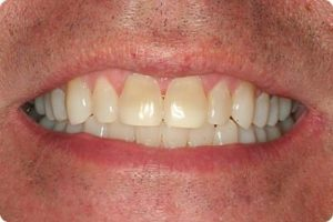 Photo After Ivisalign by Dr . Shapiro