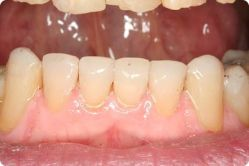 Dr. Shapiro restored teeth by composite bonding