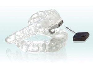 dental sleep appliance made by Dr. Shapiro