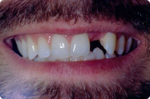 Man missing front tooth
