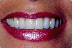 Dental blog picture #1: porcelain veneers.