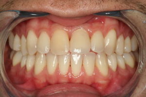 Implant front tooth