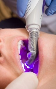 Are Glass Fillings In Your Future?
