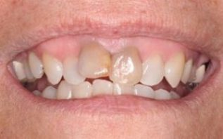 Invisalign Moves Teeth Without Braces