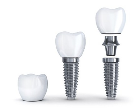 If you are looking for a more permanent solution, dental implants are the way to go.